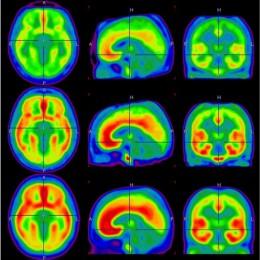 Rauchen hat langanhaltende Folgen im Gehirn