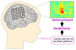 Gehirn, Hirnforschung