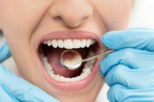 Zahnuntersuchung, Zahnspiegel, weiblicher Mund, Zahnbehandlung, Zahnreinigung, Zahnzusatzversicherung